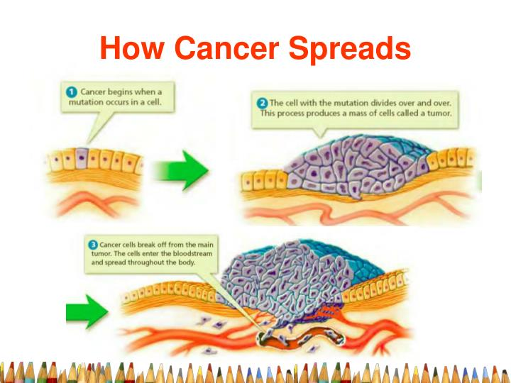 How Cancer Spreads
