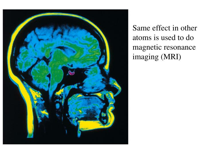 Same effect in other atoms is used to do magnetic resonance imaging (MRI)
