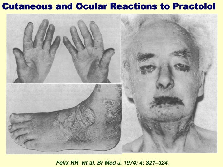 Cutaneous and Ocular Reactions to Practolol