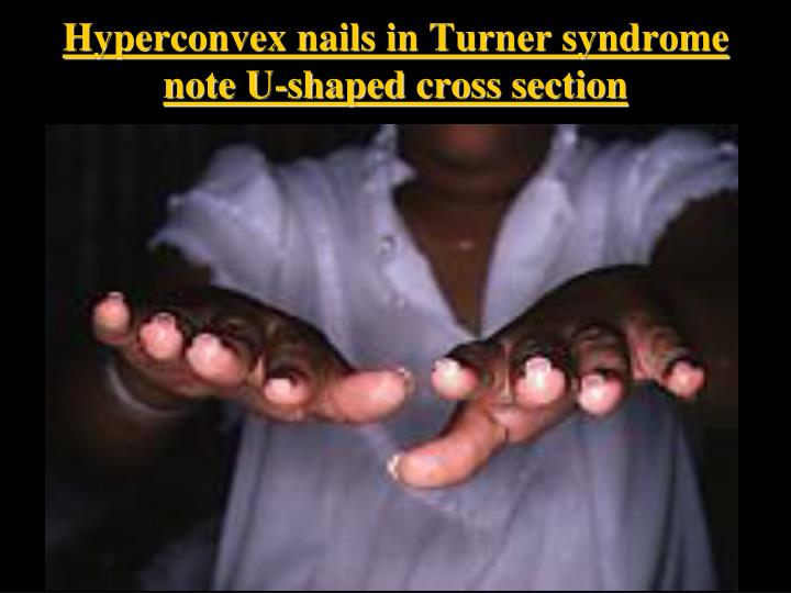 Hyperconvex nails in Turner syndrome note U-shaped cross section