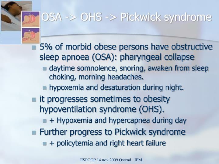 OSA -> OHS -> Pickwick syndrome