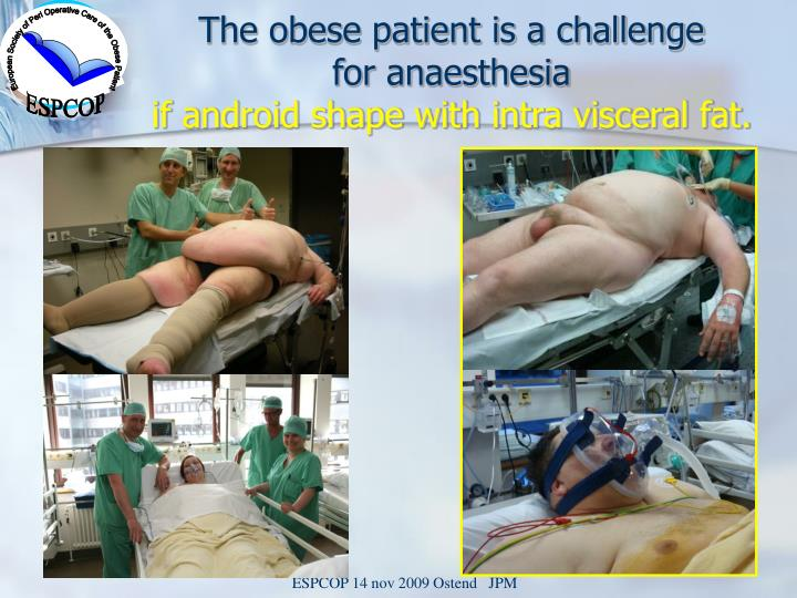 The obese patient is a challenge