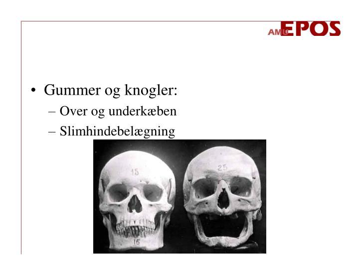 Gummer og knogler: