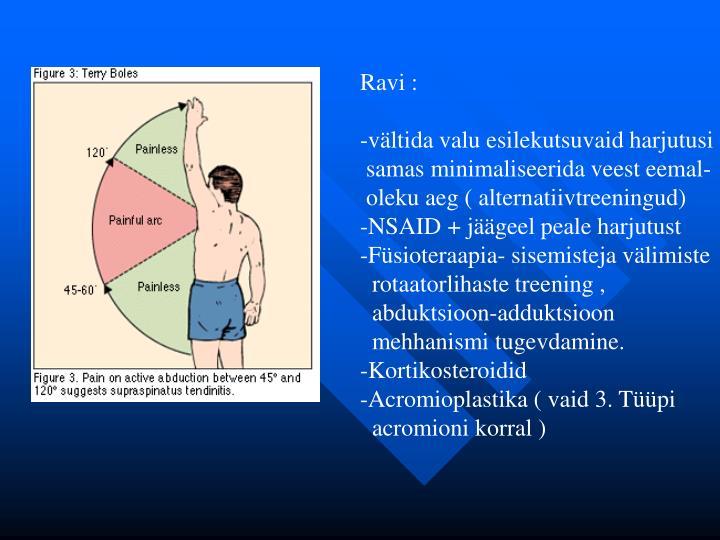 Ravi :
