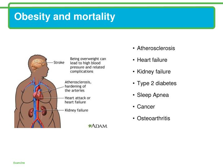 Obesity and mortality