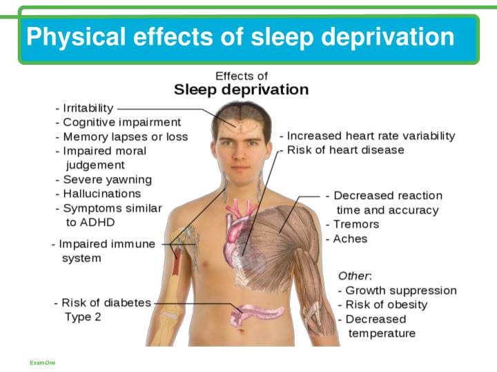 Physical effects of sleep deprivation