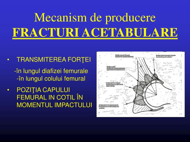 Mecanism de producere