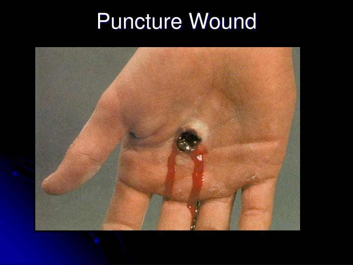 Puncture Wound