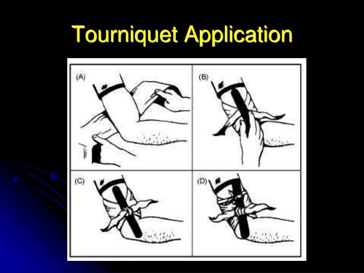 Tourniquet Application