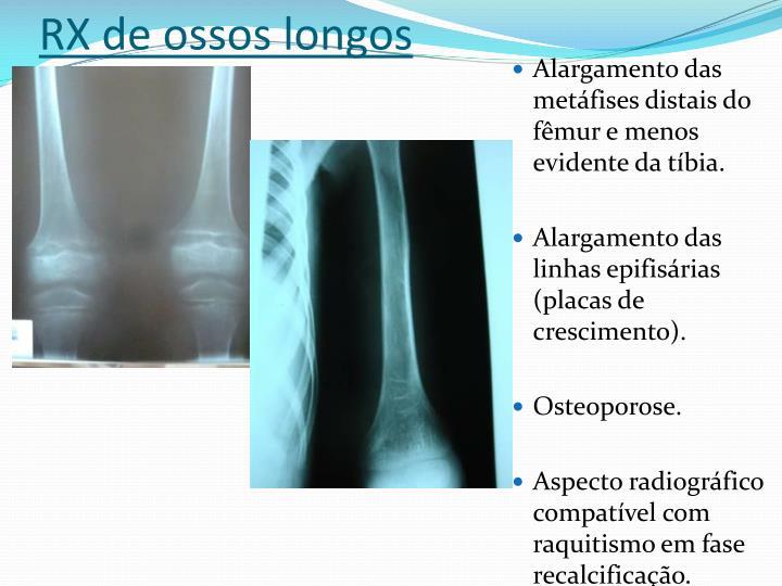 RX de ossos longos