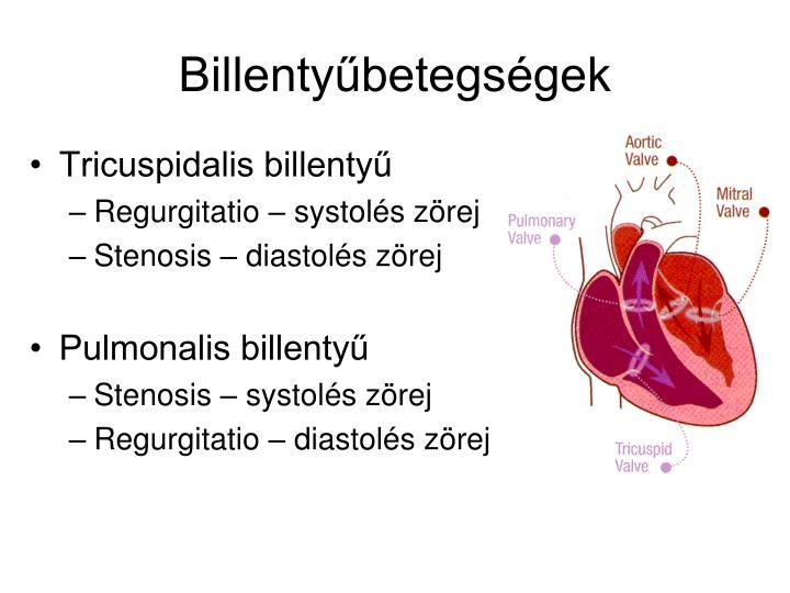 Billentyűbetegségek