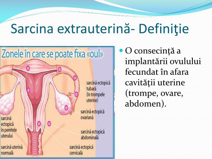 Sarcina extrauterină- Definiţie