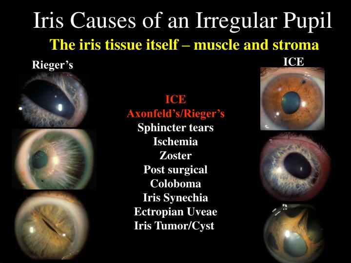 Iris causes of an irregular pupil