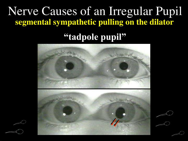 Nerve Causes of an Irregular Pupil