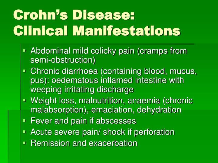 Crohn's Disease: