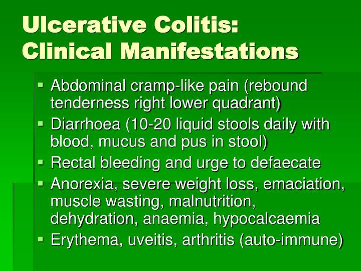 Ulcerative Colitis: