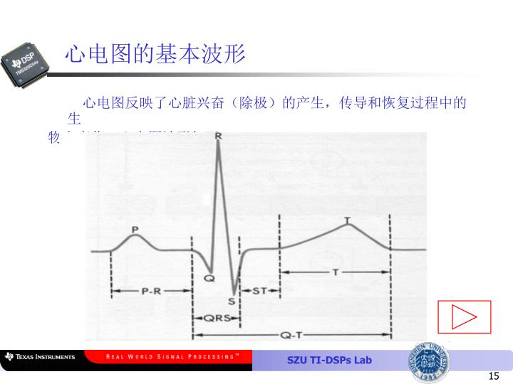 心电图的基本波形