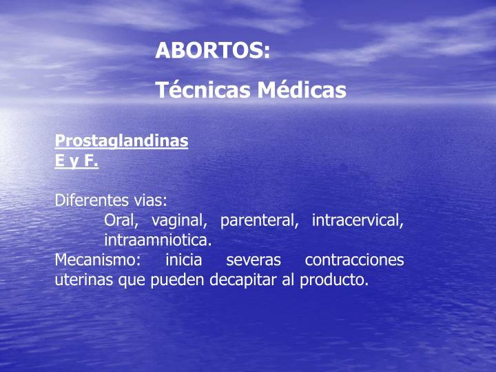 ABORTOS: