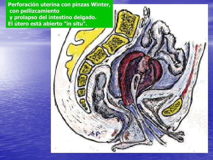 Perforación uterina con pinzas Winter,