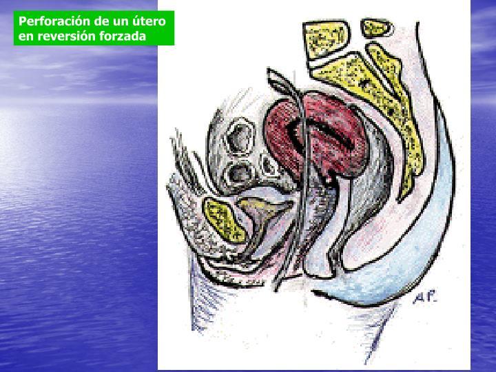 Perforación de un útero