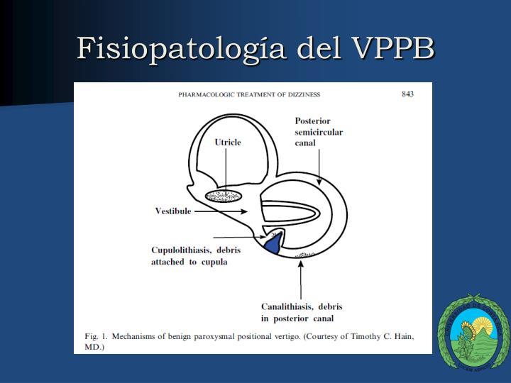 Fisiopatología del VPPB