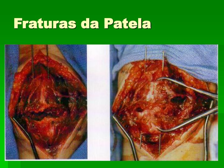 Fraturas da Patela