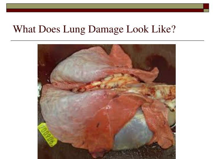 What Does Lung Damage Look Like?