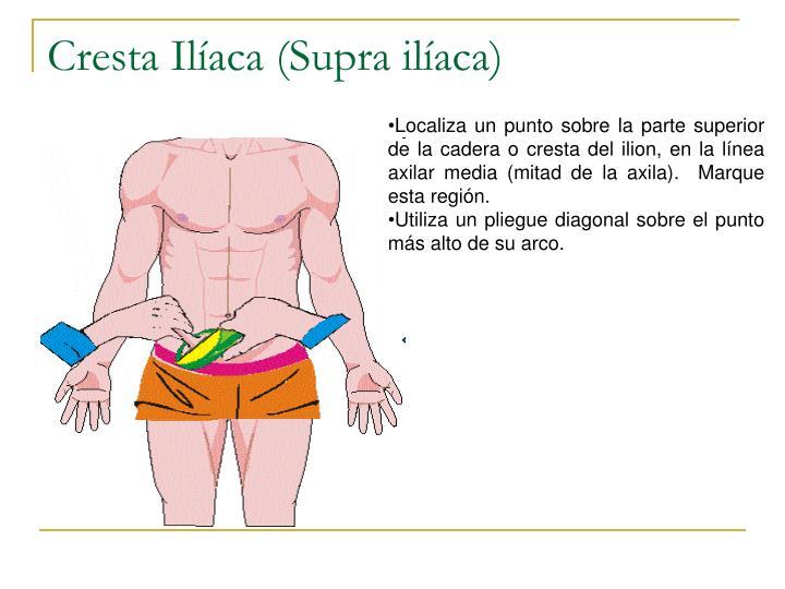 Cresta Ilíaca (Supra ilíaca)