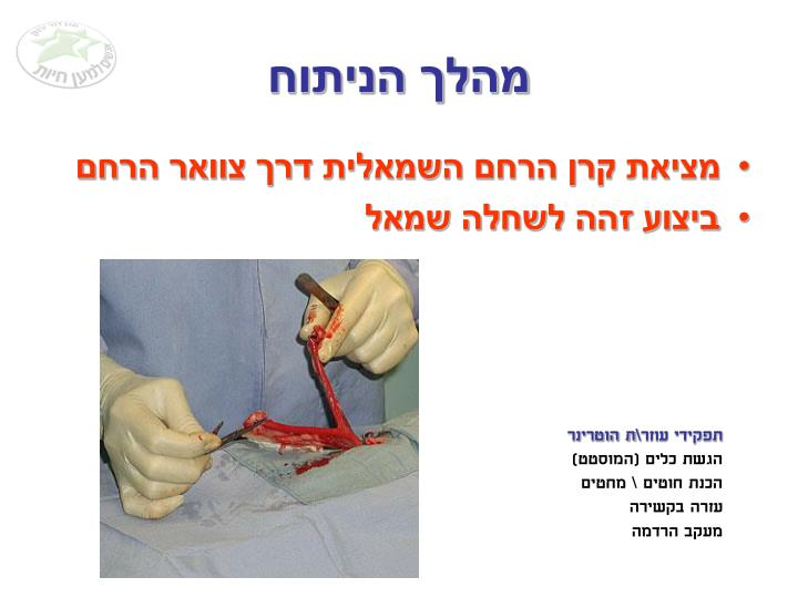מהלך הניתוח