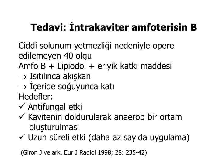 Tedavi: İntrakaviter amfoterisin B