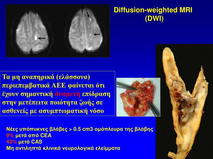 Diffusion-weighted MRI