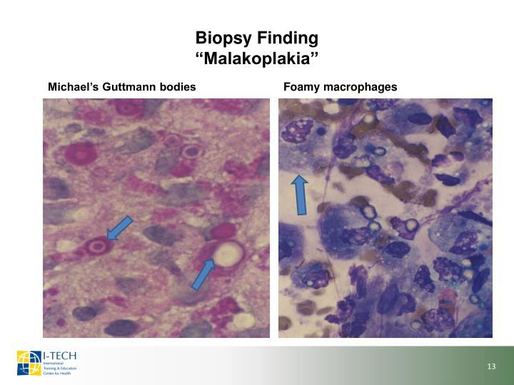 Biopsy Finding