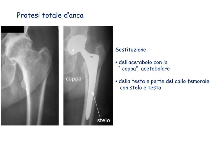 Protesi totale d'anca