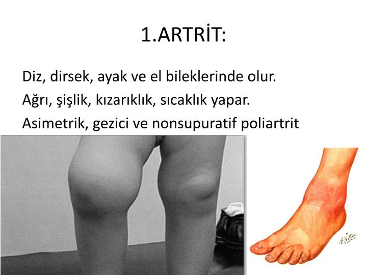 1.ARTRT: