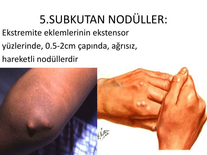 5.SUBKUTAN NODLLER: