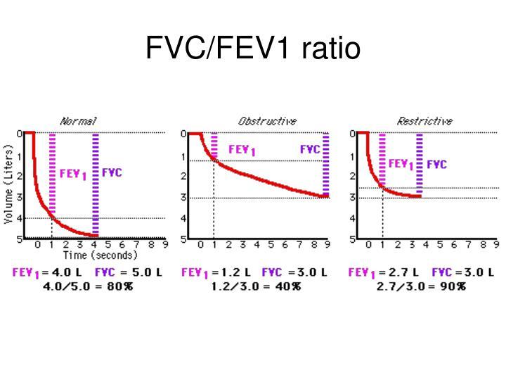 FVC/FEV1 ratio
