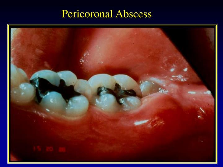 Pericoronal Abscess