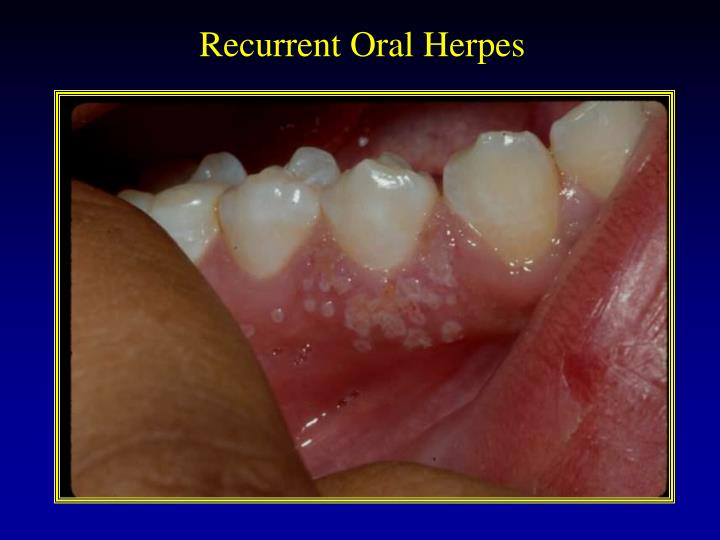 Recurrent Oral Herpes