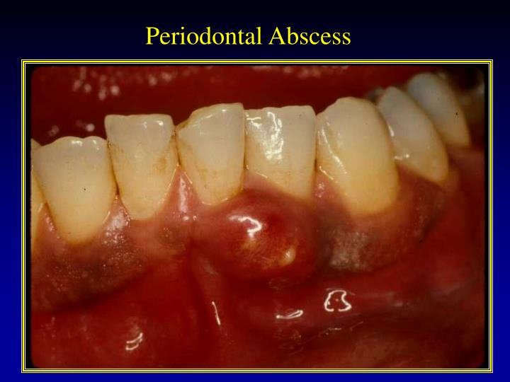 Periodontal Abscess