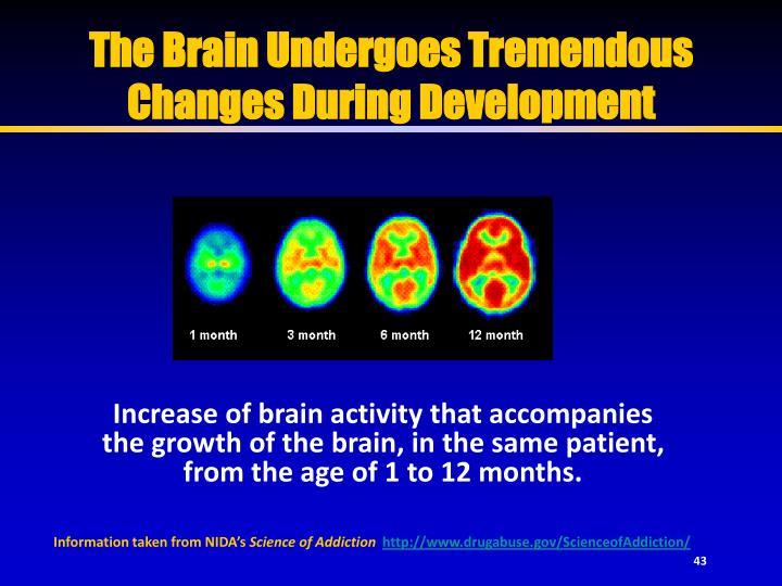 The Brain Undergoes Tremendous Changes During Development
