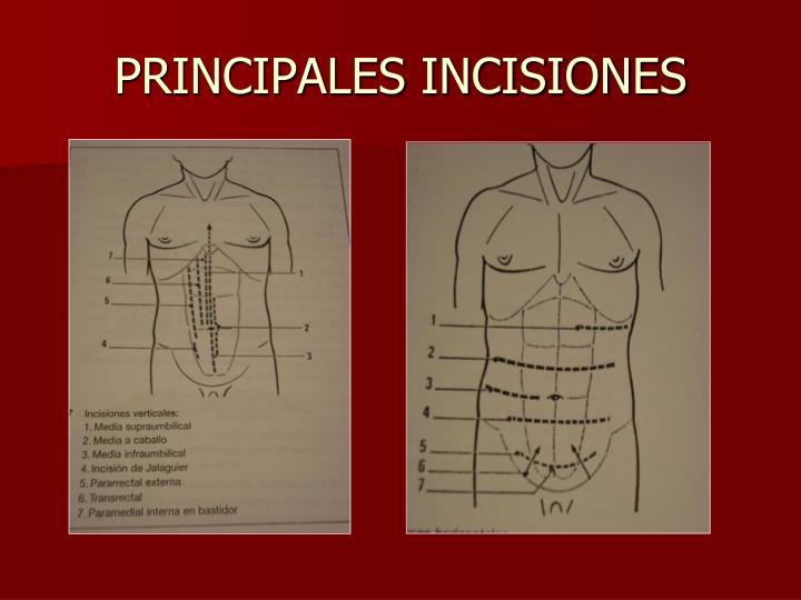 PRINCIPALES INCISIONES