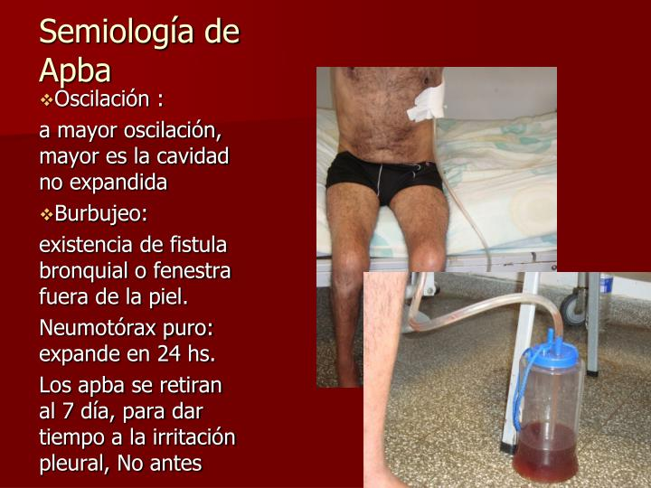 Semiología de Apba
