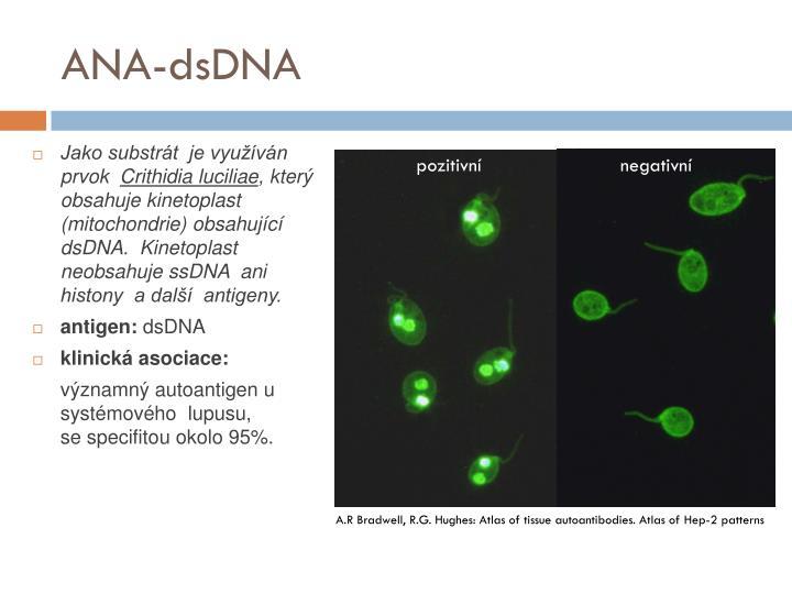 ANA-dsDNA