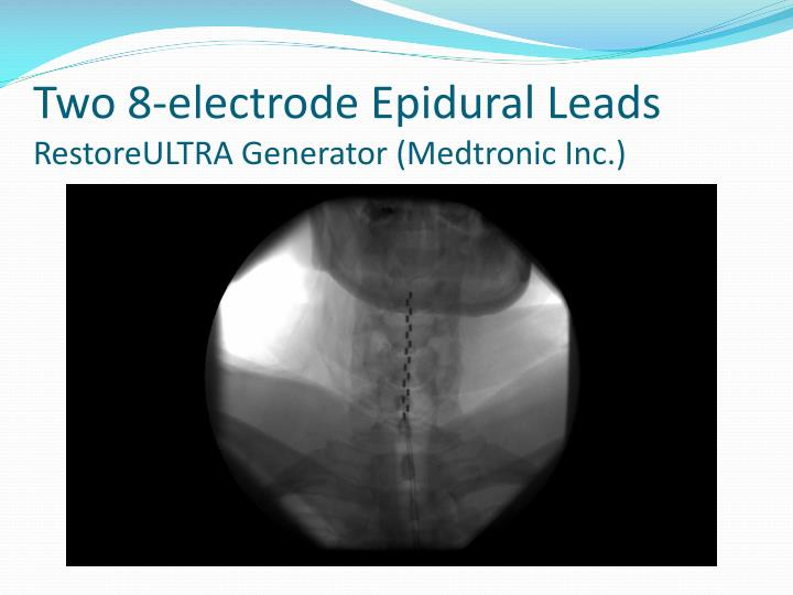 Two 8-electrode Epidural Leads