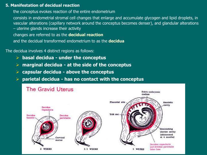 5. Manifestation of decidual reaction