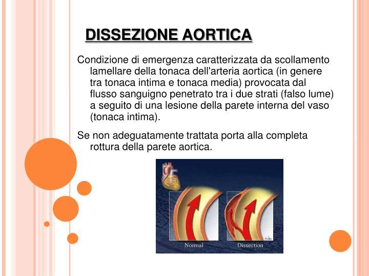 Condizione di emergenza caratterizzata da scollamento lamellare della tonaca dell'arteria aortica (in genere tra tonaca intima e tonaca media) provocata dal flusso sanguigno penetrato tra i due strati (falso lume) a seguito di una lesione della parete interna del vaso (tonaca intima).