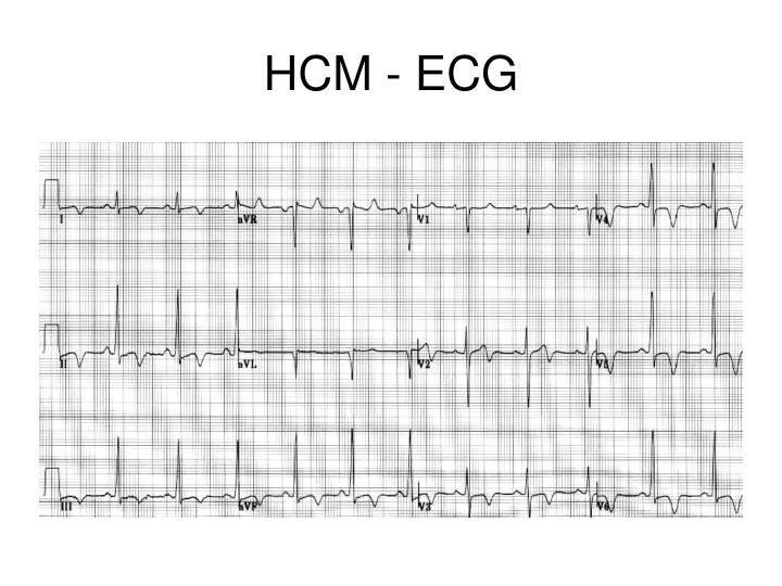 HCM - ECG