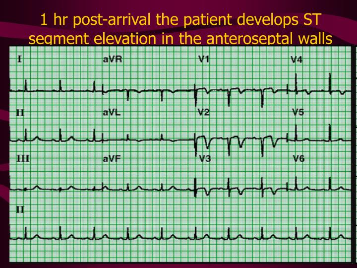 1 hr post-arrival the patient develops ST segment elevation in the anteroseptal walls
