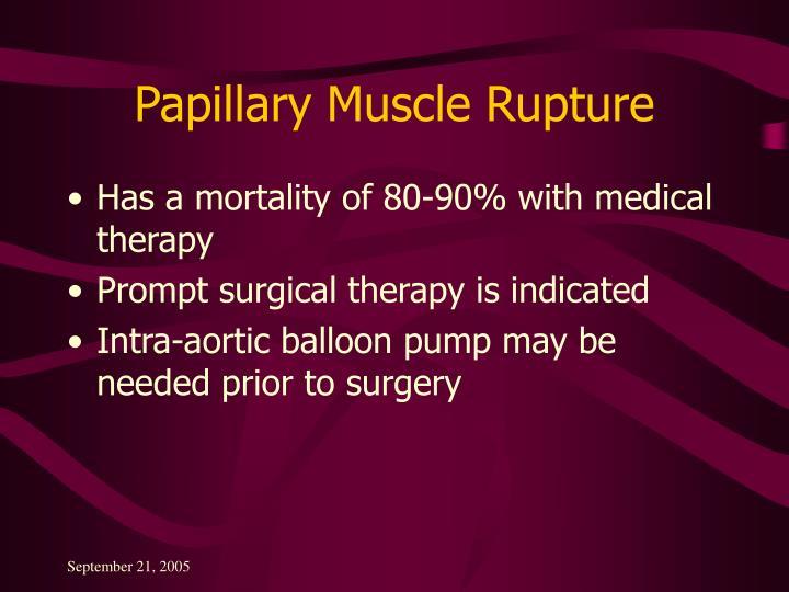 Papillary Muscle Rupture