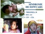 sindrome de edwuars